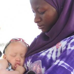 Vidéo : les enfants Albinos de Bassoul
