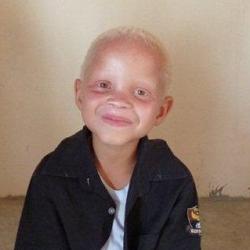 Mission spéciale à Bassoul : les albinos du village