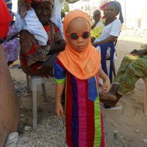 """""""Albinisme dans le Saloum"""": prévention et actions VSF"""