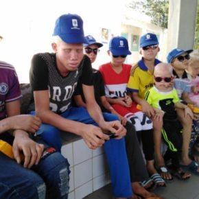 A la rencontre des albinos de Bassoul et Niodior